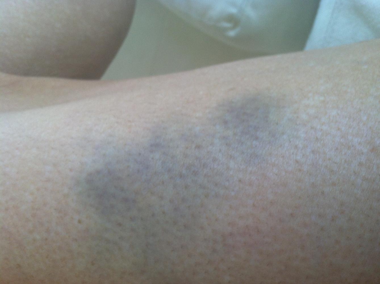 Cynthia's Injury Bike Climb - PJAMM Cycling